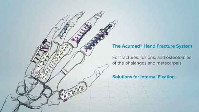 Hand Fracture System Promotional