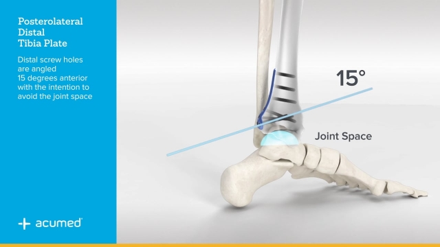 Ankle Plating System 3 Overview
