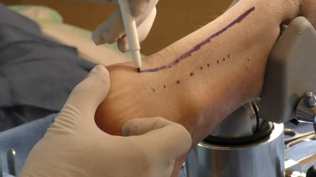 Ankle Plating System 3 Cadaveric Lab Part 2: Posterolateral Approach