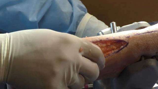 Ankle Plating System 3 Cadaveric Lab Part 3: Proximal Posterolateral Approach