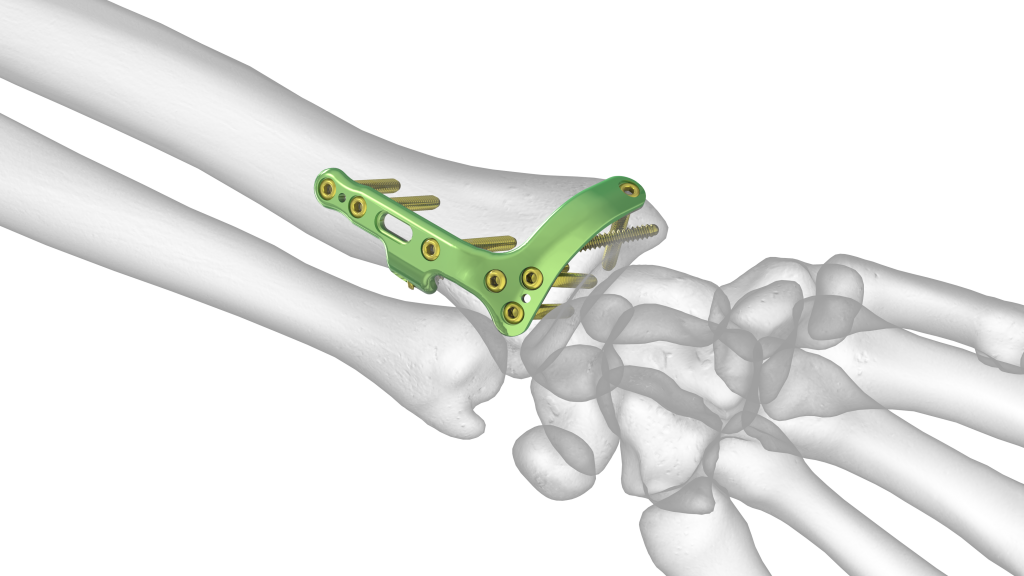 Acu-Loc 2 Wrist Plating System – Acumed