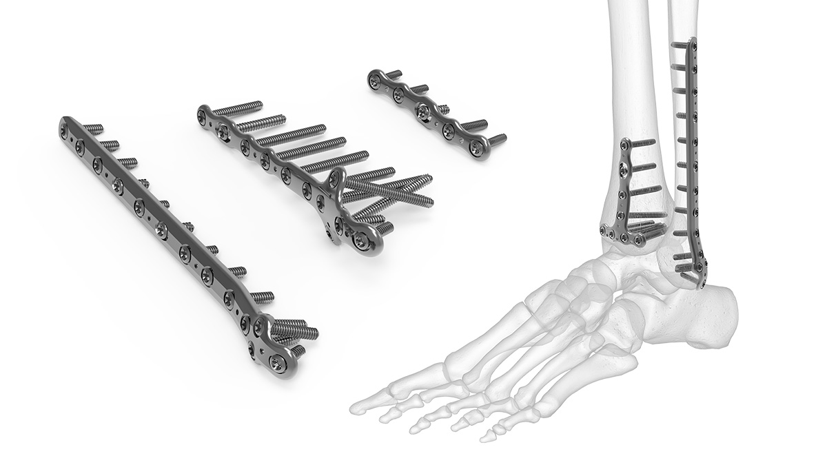 Ankle Plating System | Acumed