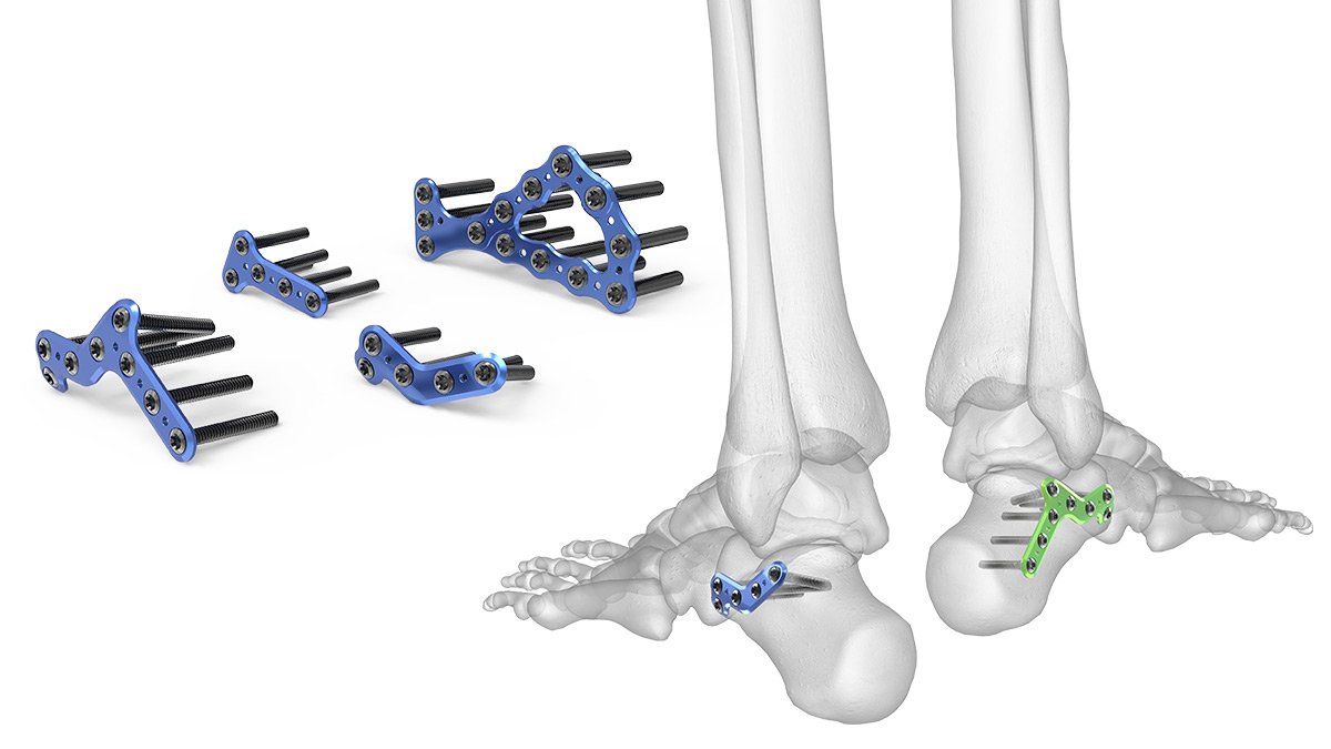 Calcaneal Plating System Acumed