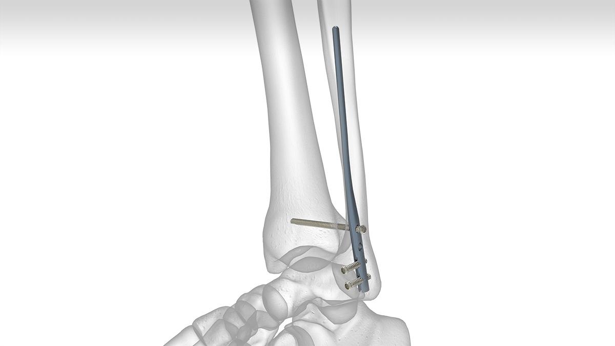 Fibula Rod System Acumed