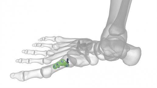 Osteotomy Plates