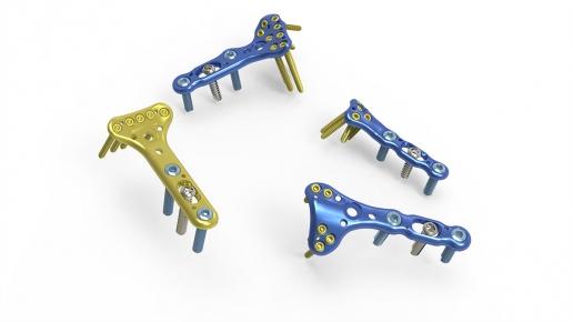 Acu-Loc Wrist Plating System