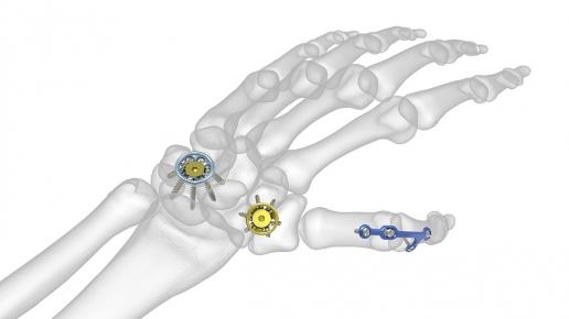 Modular Hand System