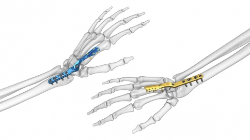 Total Wrist Fusion Plating System