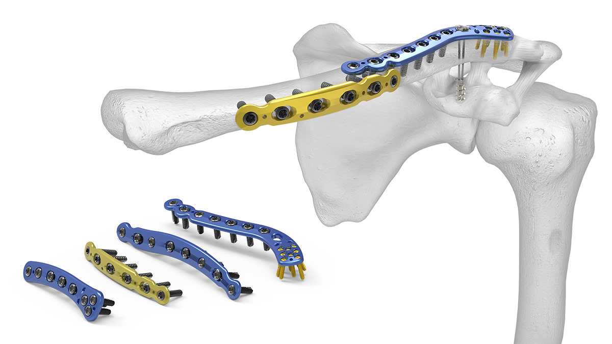 Clavicle Plating System – Acumed