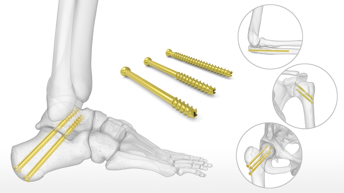 Cannulated Screw System – Acumed