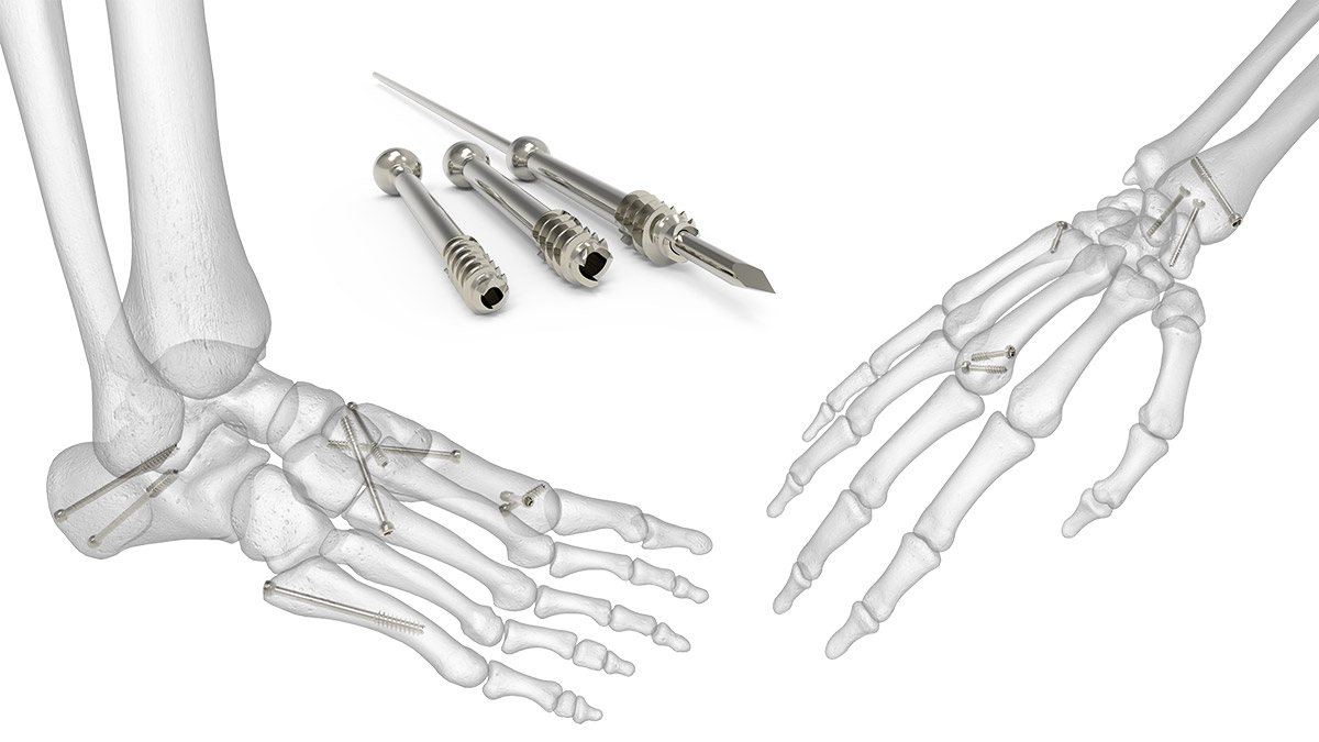 Extremity Screw System   Acumed