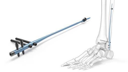 Fibula Nail 2 System